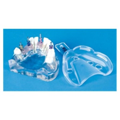 Miratray Implant Tray No.45 Up.