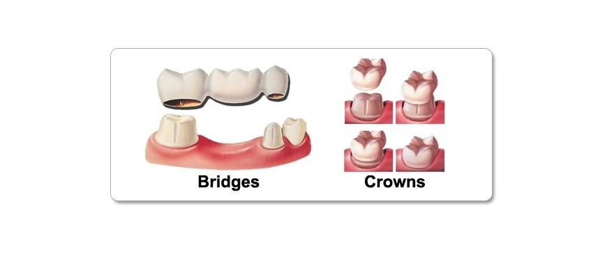 Crown & Bridge Products